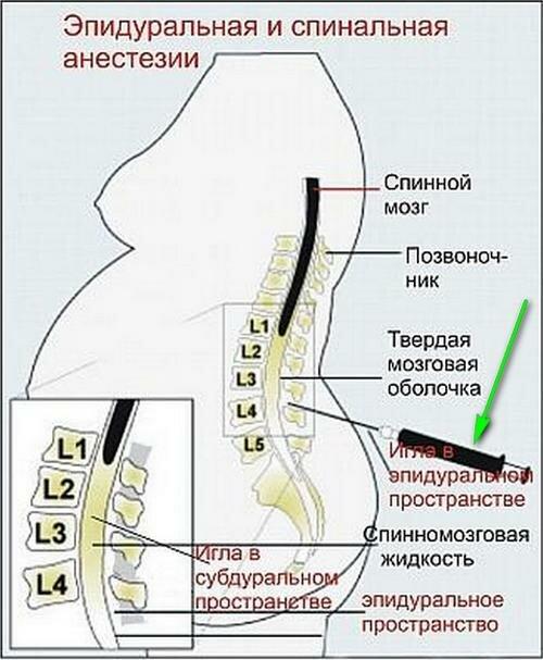 Схема эпидуральной анестезии
